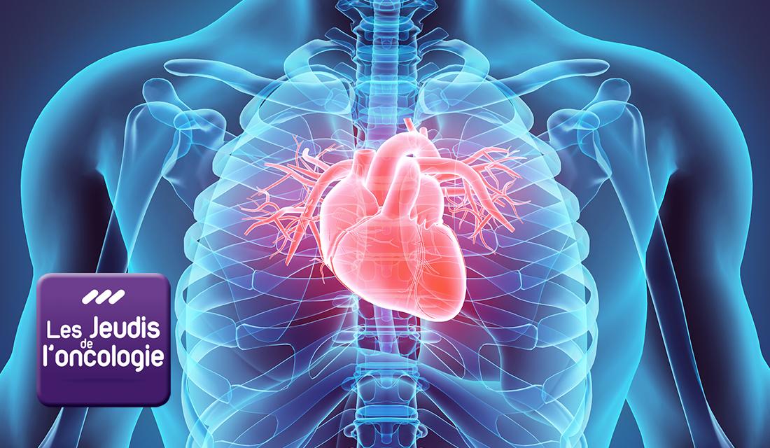 Prise en charge cardiologique des patients atteints de cancer